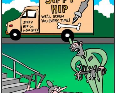 hip repalcement