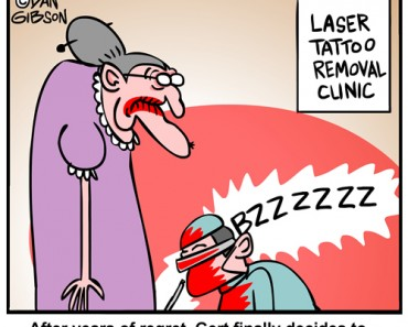 laser tattoo removal cartoon